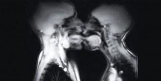 El amor a través de una resonancia magnética