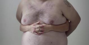 Campaña contra cáncer de mama desafía la censura