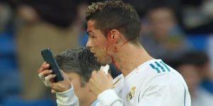 Cristiano Ronaldo pidió un celular para ver una herida en su ceja y los memes no tardaron en aparecer